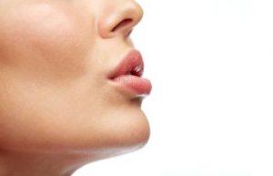 Woman's Face with Lip Fillers Atlanta GA