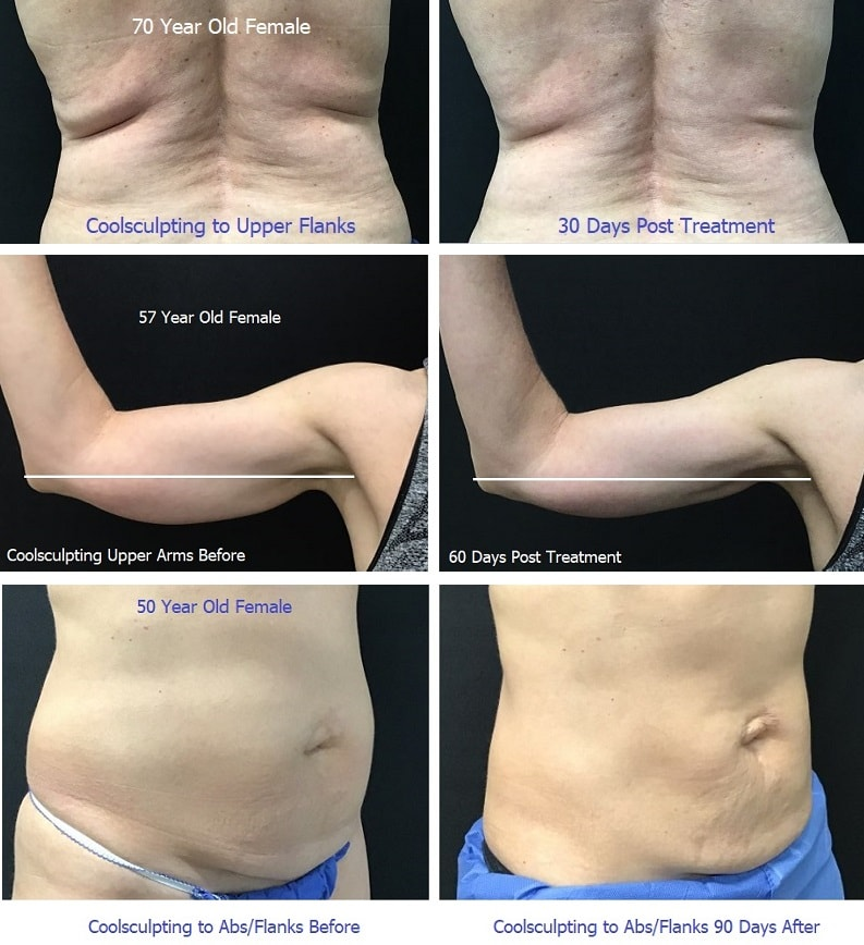 Coolsculpting - Before/After