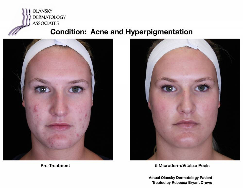 Patient with Acne. Pre-Treatment photo on the left and after 5 Microderm/Vitalize Peels photo on the right - Actual Olansky Dermatology Patient Treated by Rebecca Bryant Crowe