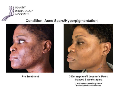 Patient with Acne Scars and Hyperpigmentation. Pre-Treatment photo on the left and after 3 Dermaplane/3 Jessner's Peels Spaced 8 Weeks Apart photo on the right - Actual Olansky Dermatology Patient Treated by Rebecca Bryant Crowe