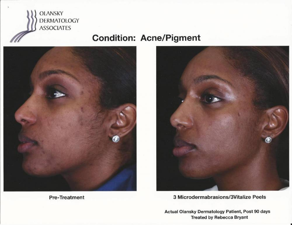 Patient with Acne and Pigmentation. Pre-Treatment photo on the left and after 3 Microdermabrasions/ 3 Vitalize Peels photo on the right - Actual Olansky Dermatology Patient, Post 90 Days Treated by Rebecca Bryant