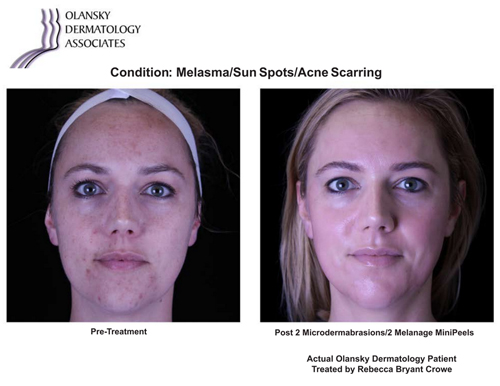 Patient with Melasma, Sun Spots and Acne Scarring. Pre-Treatment photo on the left and after 2 Microdermabrasions/2 Melange Mini Peels photo on the right - Actual Olansky Dermatology Patient Treated by Rebecca Bryant Crowe