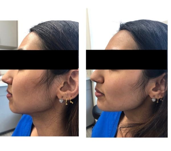 Female Patient Before and After Botox for Jawline Reshaping Procedure