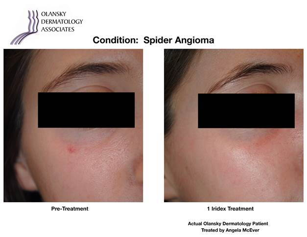 Patient with Spider Angioma. Pre-Treatment photo on the left and after 1 Iridex Treatment photoo on the right - Actual Olansky Dermatology Patient Treated by Angela McEver