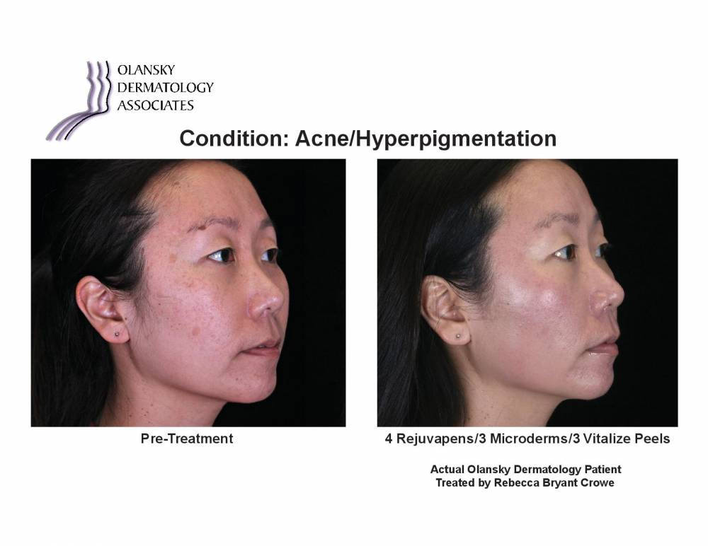 Patient with Hyperpigmentation. Pre-Treatment photo on the left and after 4 Rejuvapens/3 Microderms/3 Vitalize Peels photo on the right - Actual Olansky Dermatology Patient Treated by Rebecca Bryant Crowe