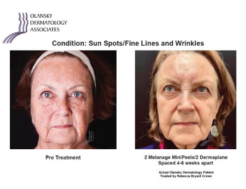 Patient with Sun Spots, Fine Lines and Wrinkles. Pre-Treatment photo on the left and after 2 Melange Mini Peels/2 Dermaplane Spaced 4-6 Weeks Apart photo on the right - Actual Olansky Dermatology Patient Treated by Rebecca Bryant Crowe