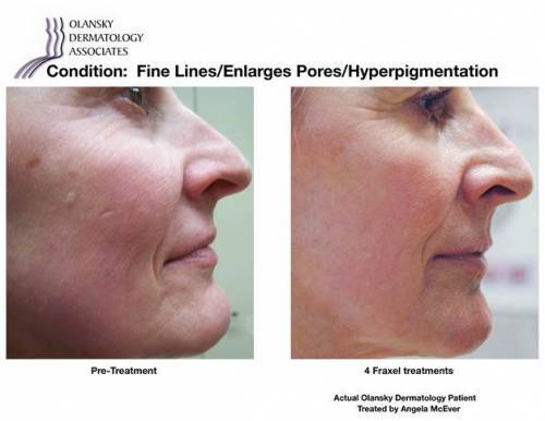 Patient with Fine Lines, Enlarged Pores and Hyperpigmentation. Pre-Treatment photo on the left and after 4 Fraxel treatments photo on the right - Actual Olansky Dermatology Patient Treated by Angela McEver