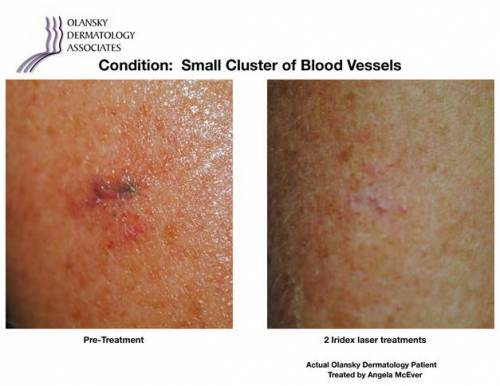 Patient with Small Cluster of Blood Vessels. Pre-Treatment photo on the left and after 2 Iridex Laser Treatments photo on the right - Actual Olansky Dermatology Patient Treated by Angela McEver