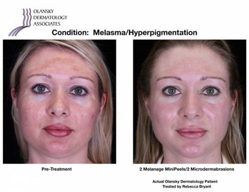 Patient with Melasma and Hyperpigmentation. Pre-Treatment photo on the left and after 2 Melange MiniPeels/2 Microdermabrasions photo on the right - Actual Olansky Dermatology Patient Treated by Rebecca Bryant