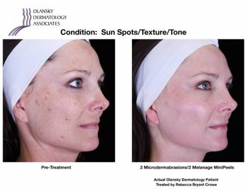 Patient with Sun Spots and Uneven Skin Texture and Tone. Pre-Treatment photo on the left and after 2 Microdermabrasions/2 Melange Mini Peels photo on the right - Actual Olansky Dermatology Patient Treated by Rebecca Bryant Crowe