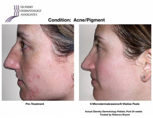Patient with Acne and Pigmentation. Pre-Treatment photo on the left and after 6 Microdermabrasions/ 6 Vitalize Peels photo on the right - Actual Olansky Dermatology Patient, Post 24 Weeks Treated by Rebecca Bryant