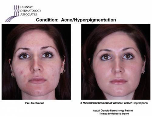 Patient with Acne. Pre-Treatment photo on the left and after 3 Microdermabrasions/3 Vitalize Peels/2 Rejuvapens photo on the right - Actual Olansky Dermatology Patient Treated by Rebecca Bryant