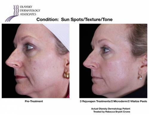 Patient with Sun Spots, Uneven Skin Texture and Tone. Pre-Treatment photo on the left and after 3 Rejuvapen Treatments/ 2 Vitalize peels photo on the right - Actual Olansky Dermatology Patient Treated by Rebecca Bryant Crowe