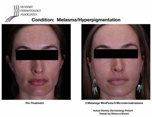 Patient with Melasma and Hyperpigmentation. Pre-Treatment photo on the left and after 3 Melange MiniPeels/3 Microdermabrasions photo on the right - Actual Olansky Dermatology Patient Treated by Rebecca Bryant