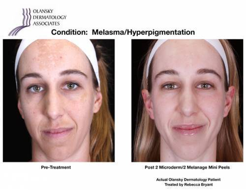 Patient with Melasma and Hyperpigmentation. Pre-Treatment photo on the left and after 2 Microdermabrasions/2 Melange Mini Peels photo on the right - Actual Olansky Dermatology Patient Treated by Rebecca Bryant