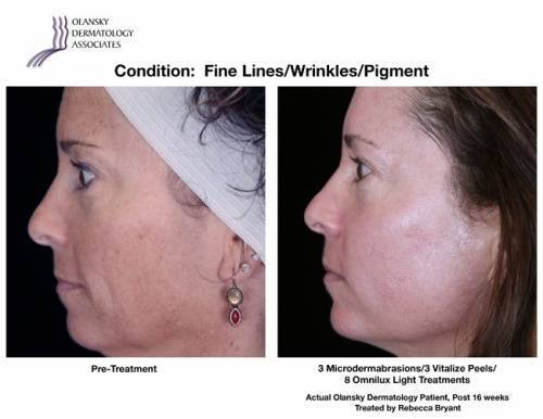 Patient with Pigmentation and Fine Lines and Wrinkles. Pre-Treatment photo on the left and after 3 Microdermabrasions/3 Vitalize Peels/8 Omnilux Light Treatments photo on the right - Actual Olansky Dermatology Patient, Post 16 weeks Treated by Rebecca Bryant.