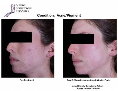 Patient with Acne and Pigmentation. Pre-Treatment photo on the left and after 3 Microdermabrasions/ 3 Vitalize Peels photo on the right - Actual Olansky Dermatology Patient Treated by Rebecca Bryant