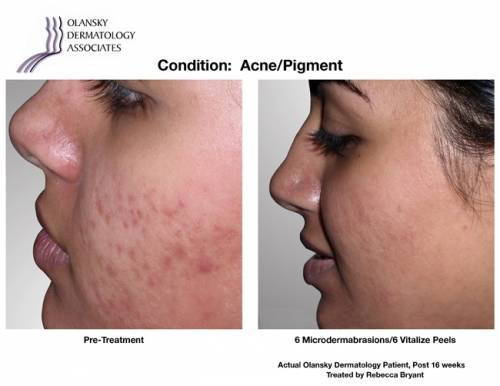 Patient with Acne and Pigmentation. Pre-Treatment photo on the left and after 6 Microdermabrasions/ 6 Vitalize Peels photo on the right - Actual Olansky Dermatology Patient, Post 16 Weeks Treated by Rebecca Bryant