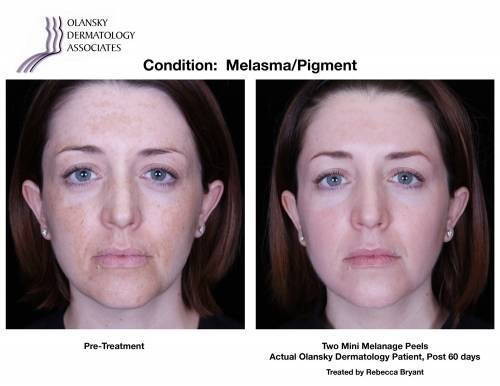 Patient with Melasma and Pigmentation. Pre-Treatment photo on the left and after 2 Mini Melange Peels photo on the right - Actual Olansky Dermatology Patient, Post 60 days Treated by Rebecca Bryant
