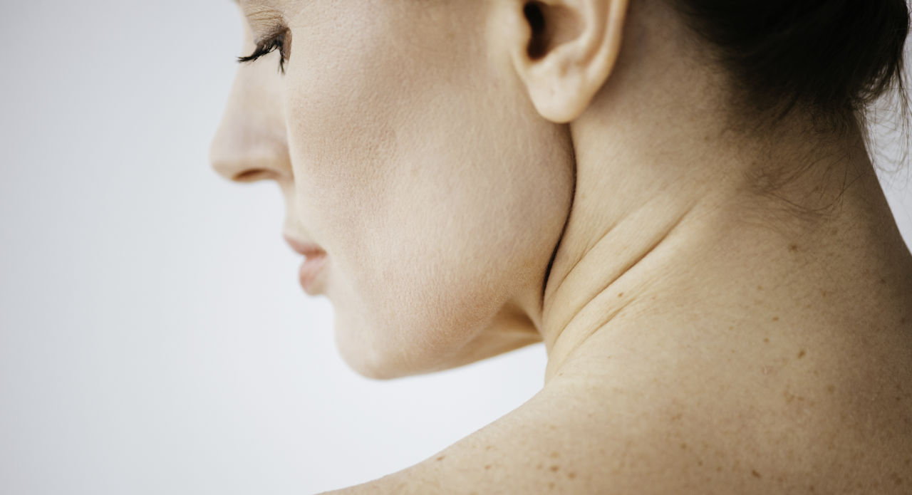 woman with moles on her back