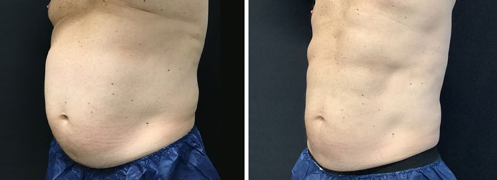 Before and after pictures of 52 year old male - weightloss