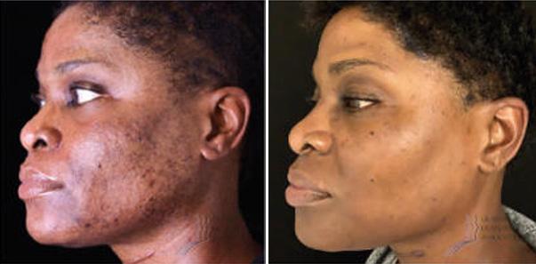 Pre Treatment – 3 Dermaplane/3 Jessner's Peel spaced 8 weeks apart