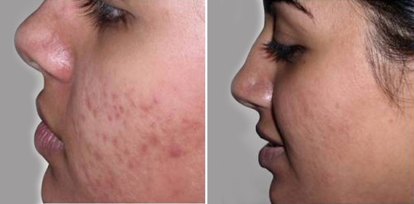 Before and after 6 microdermabrasions and 6 vitalize peels