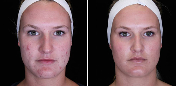 Conditions: Acne and Hyperpigmentation