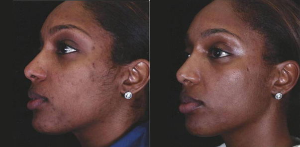 Before and After shot of pretreatment and 3 microdermbrasions/3 vitalize peels