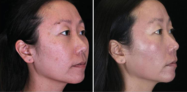 Before and after 4 Rejuvapens/3 Microderms/3 Vitalize Peels