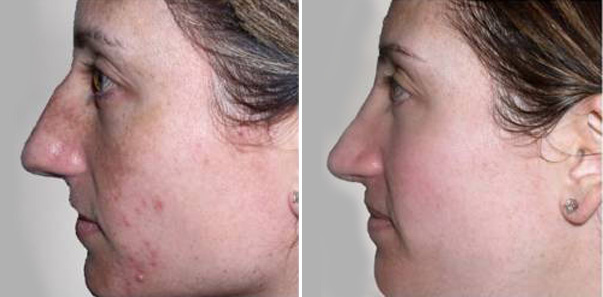 Before and After 5 microdermabrasions/6 vitalize peels