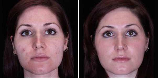 Before and after 3 Microdermabrasions/3 Vitalize Peels/2 Rejuvapens