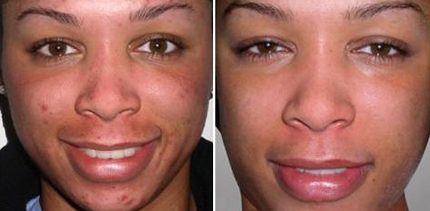 Before and after 6 Microdermabrasions/6 Vitalize Peels