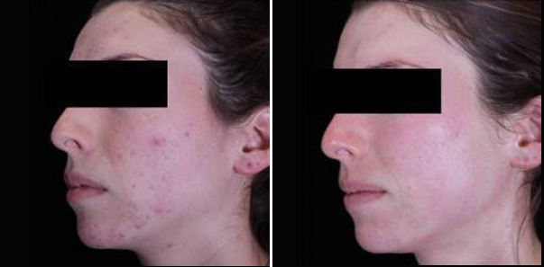 Before and after 3 Microdermabrasions/3 Vitalize Peels